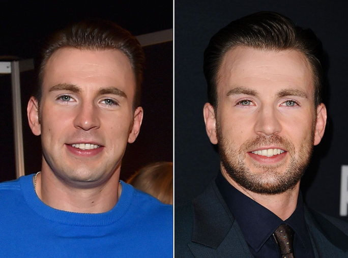 เครา or No Beard - Chris Evans